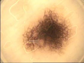 Dysplastischer Nävus - Muttermal