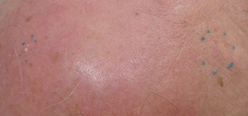 Solare Keratose - Weißer Hautkrebs